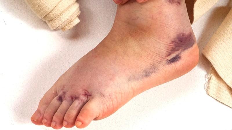 Esguince de tobillo con hematoma