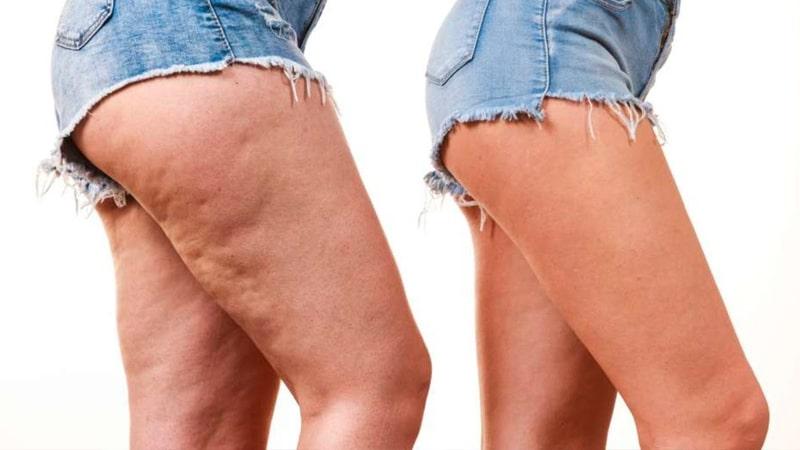 Mujer con celulitis en las piernas