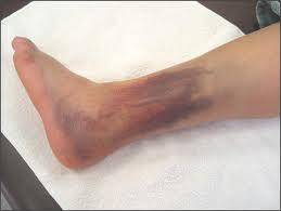 Esguince del ligamento lateral externo del tobillo