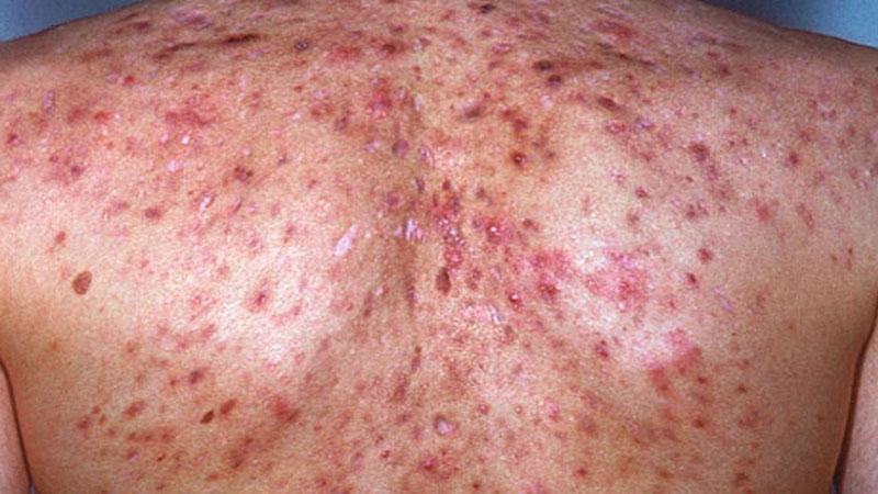 acné en la espalda