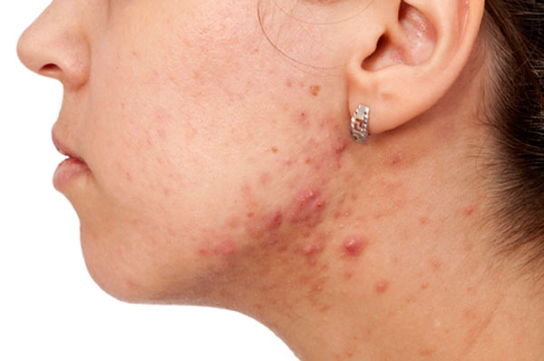 acné|higiene-limpieza-cara-prevenir-acne|tratamiento-acne-casero-vinagre-manzana