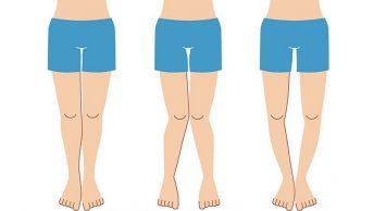 Alineación de piernas y cadera