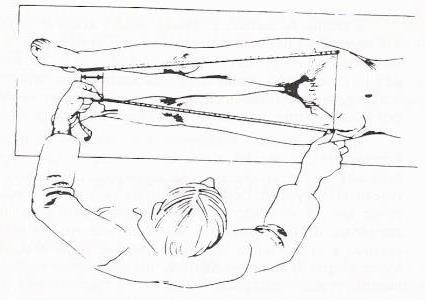 dismetria-extremidades-inferiores-4