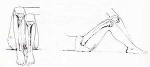 dismetria-extremidades-inferiores-5