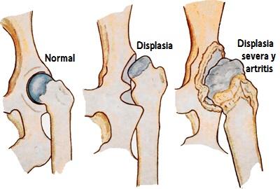 displasia-cadera-perros-1