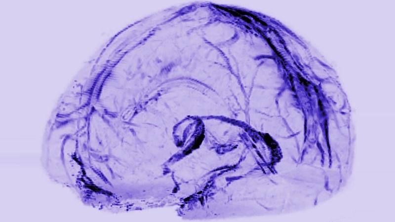 Drenaje en vasos linfáticos del cerebro
