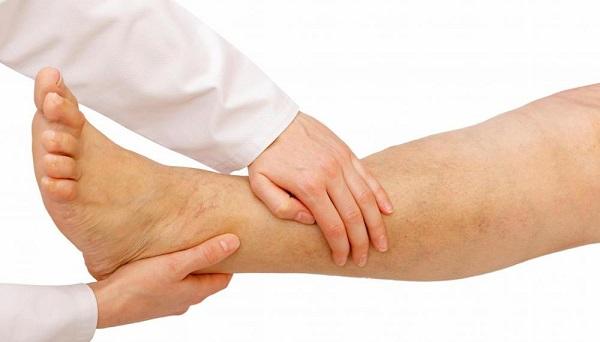 edema-en-la-pierna|edema-en-el-tobillo|esquema-de-la-formacion-de-la-linfa