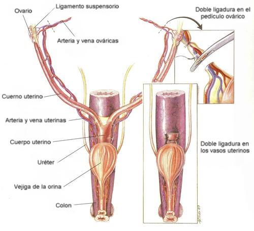 Esquema del aparato reproductor de la perra. A la derecha las ligaduras de la ovariohisterectomía.