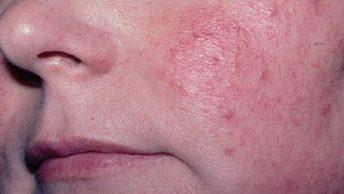 hiperplasia sebácea en la cara