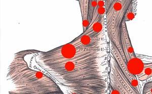 La importancia del dolor miofascial|imagen_2