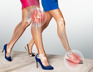 Efecto del calzado con tacón sobre el tobillo 1