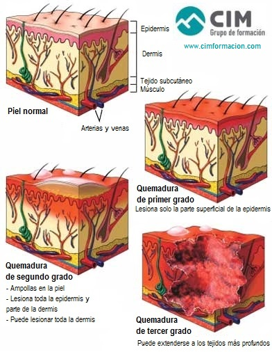 masaje-quemaduras-sol-1-CIM-Formacion