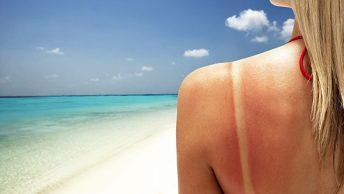 masaje-quemaduras-sol-2-CIM-Formacion|masaje-quemaduras-sol-1-CIM-Formacion|aloe-vera-masaje-quemaduras-sol-CIM-Formacion|masaje-quemaduras-sol-3-CIM-Formacion|masaje-piedras-frias-quemaduras-sol-4-CIM-Formacion
