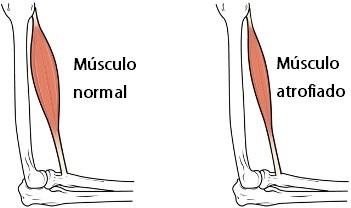 musculo normal vs musculo atrofiado