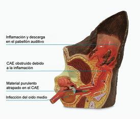Esquema de un oído que padece otitis externa extendida ya hacia el oído medio.