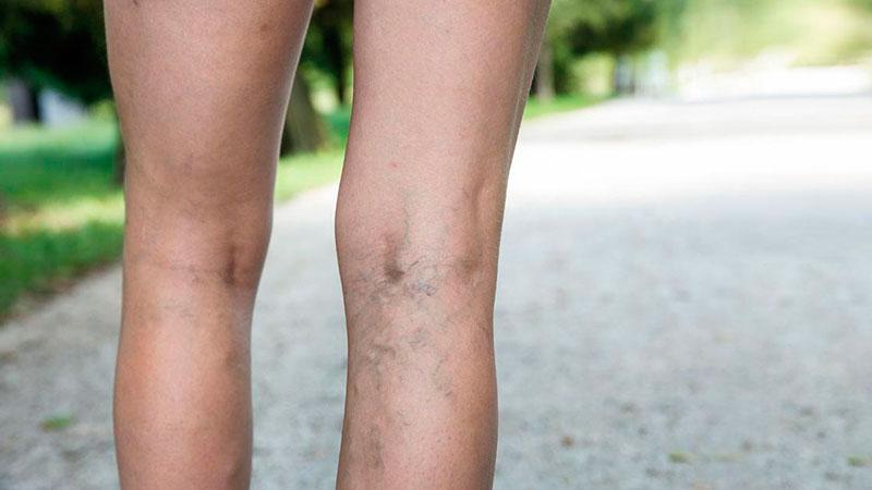 piernas-con-varices|masaje-en-piernas-con-varices