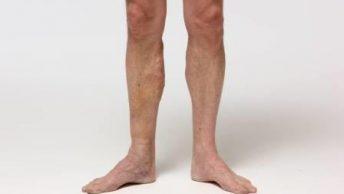 piernas con varices|varices