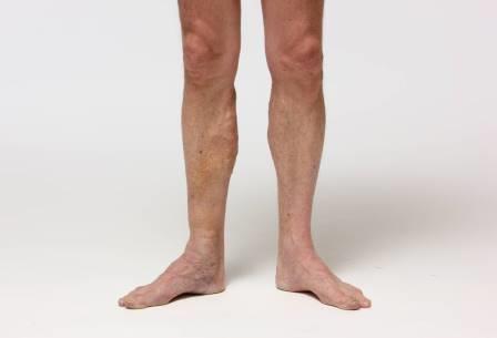 piernas con varices varices