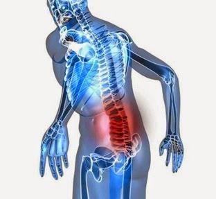 prevencion lumbalgia|Columna vertebral|dolor de espalda