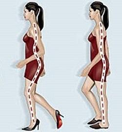 problemas-tacones-columna-vertebral