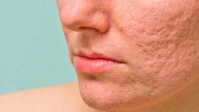 vacuna-acne