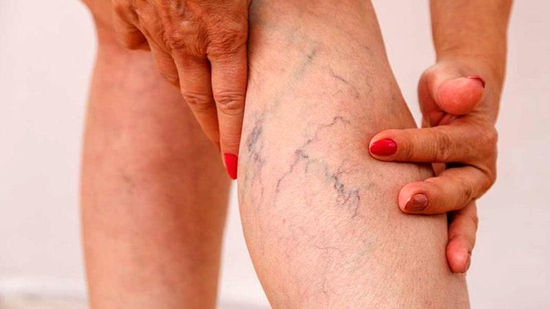 varices-pierna-min|varices en piernas|varices|Baños con sales de Epson para varices|masaje para prevenir varices|piernas mujeres|Banos con sales de Epson para varices