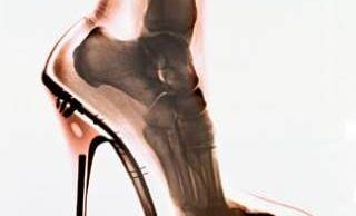 zapato-tacon-alto High heel shoed can cause nerve and bone damage in women's feet dorsiflexion-flexion-plantar-pie-tobillo lesiones-dolor-zapato-tacon-alto zapatos-tacon-alto