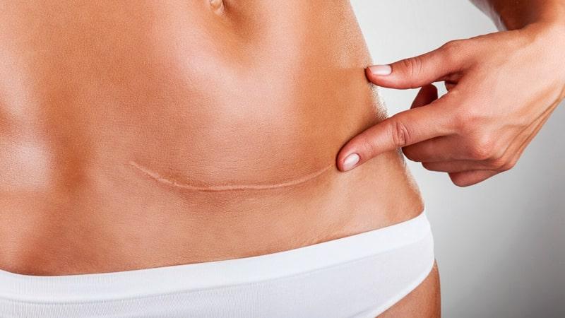 Mujer señala cicatriz en el vientre