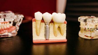 Maquetas de tratamientos dentales