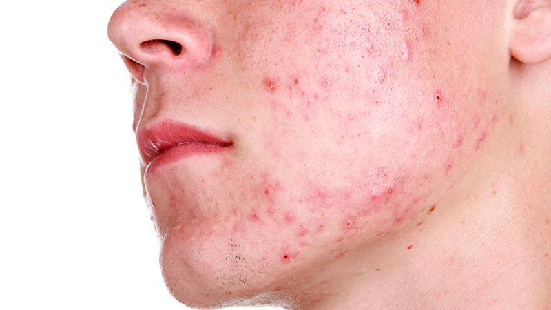 estetica y belleza Cuestiones sobre el acné que debes saber