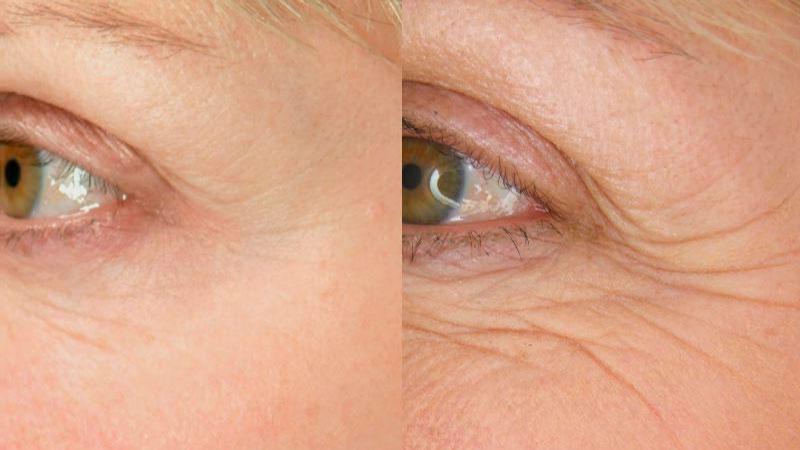 arrugas en la piel y los ojos